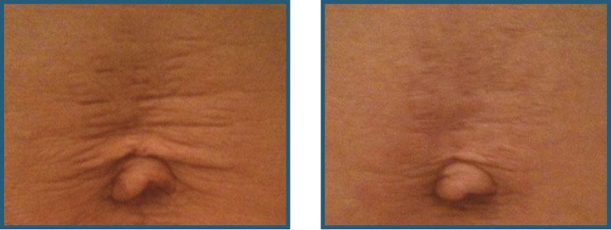 Før / efter Strækmærker, ar og slap hud Beauty Angel lys - behandling forhandler Lykke & velvære i Helsingør Nordsjælland
